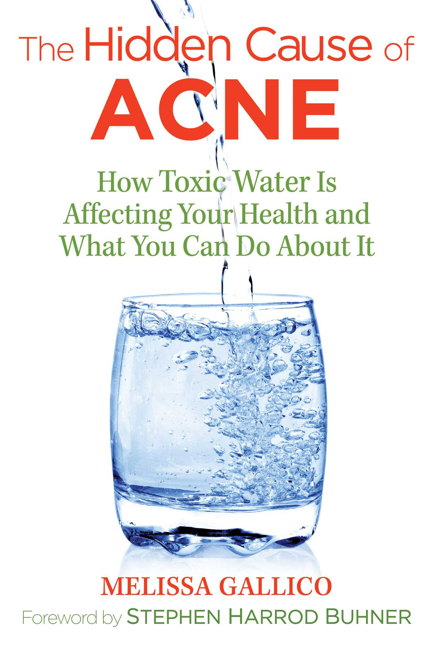 The hidden cause of acne 9781620557099 hr