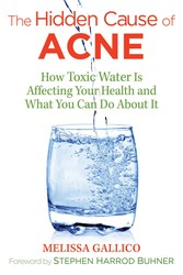 The hidden cause of acne 9781620557099